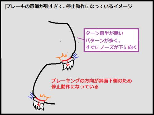 停止動作のエッジグリップのイメージ